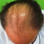 Pesadelo masculino: estima-se que a calvície afete metade da população de homens aos 50 anos